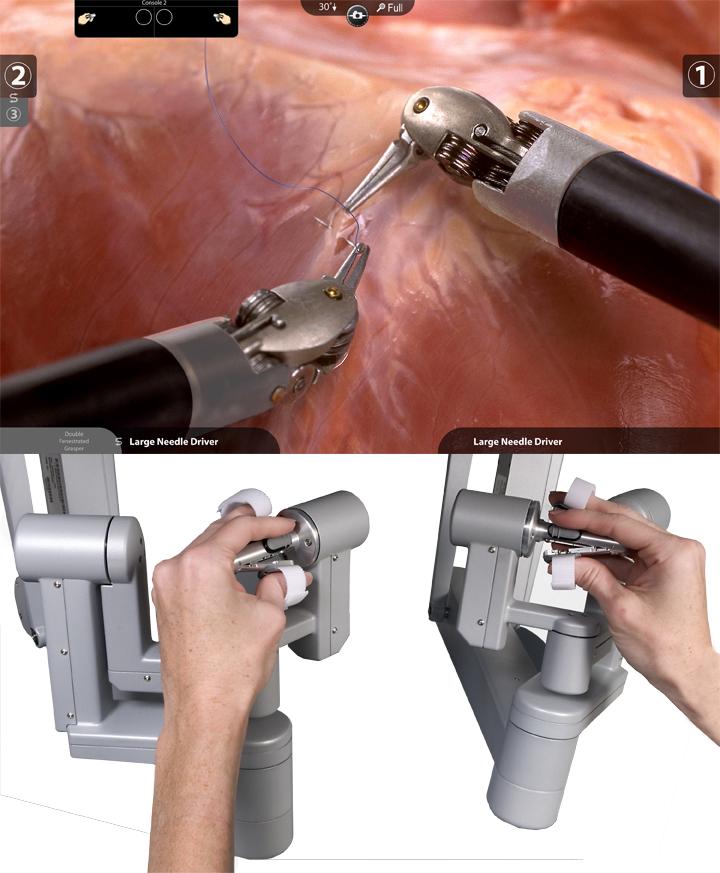 Fig. 3: Le mani del chirurgo utilizzando le manopole e l'immagine corrispondente degli strumenti con delle articolazioni nel corpo del paziente (immagine da Intuitive Surgical, Sunnyvale,, CA, USA).