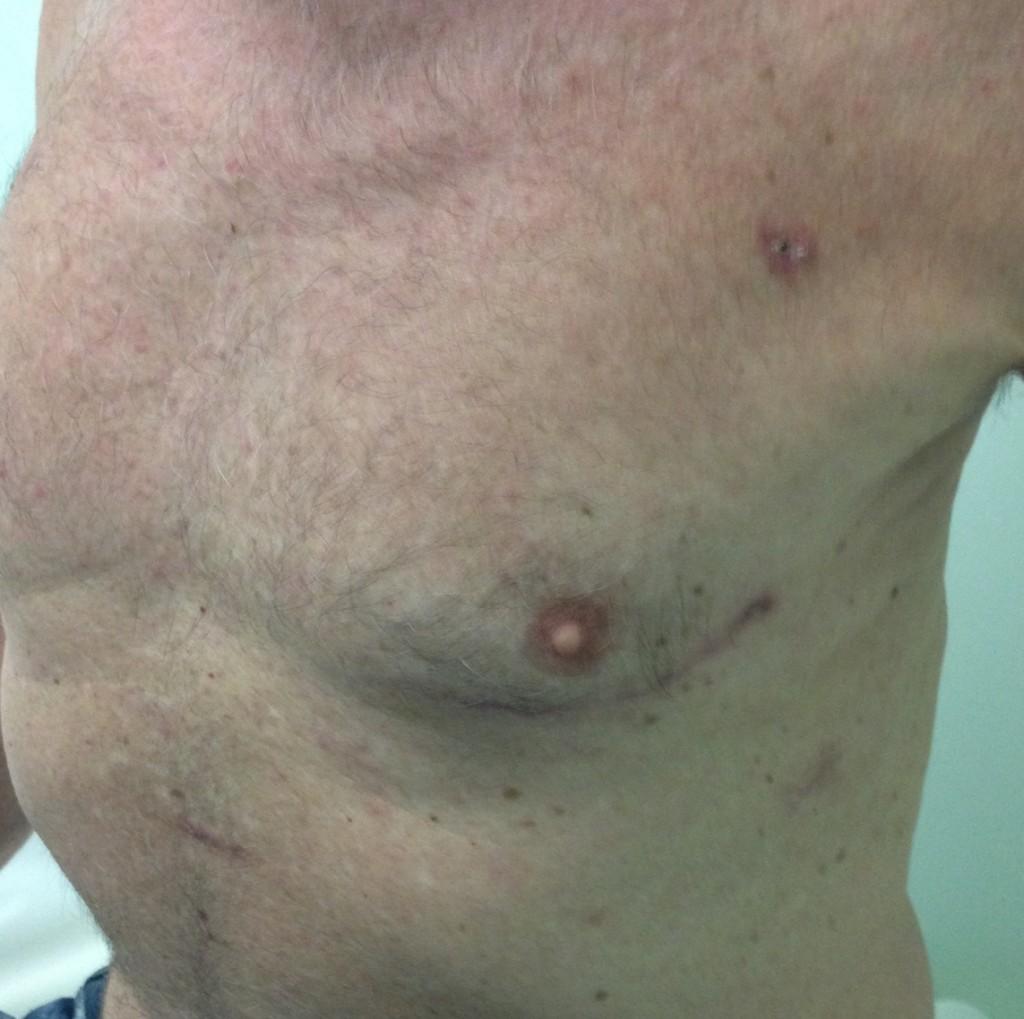 Controllo a 6 settimane dopo duplice bypass aortocoronarico.