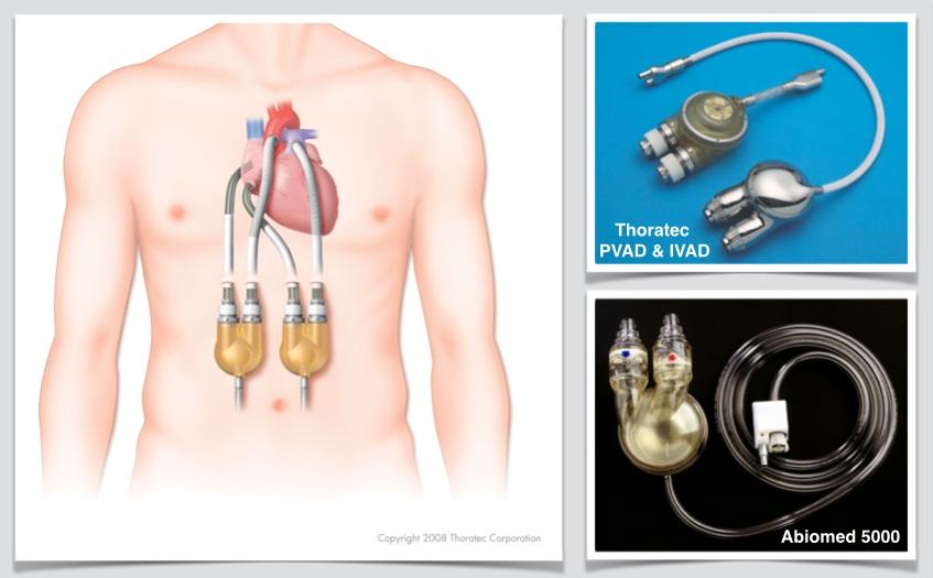 Fig. 5: Sistemi d'assistenza bi-ventricolare.