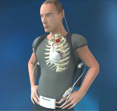 Fig. 3: Rappresentazione grafica del sistema del CARMAT TAH al paziente. Si riconoscono le 2 batterie (lungo il torace), la console di controllo (alla cintura) e il contatto dietro l'orecchio del paziente.