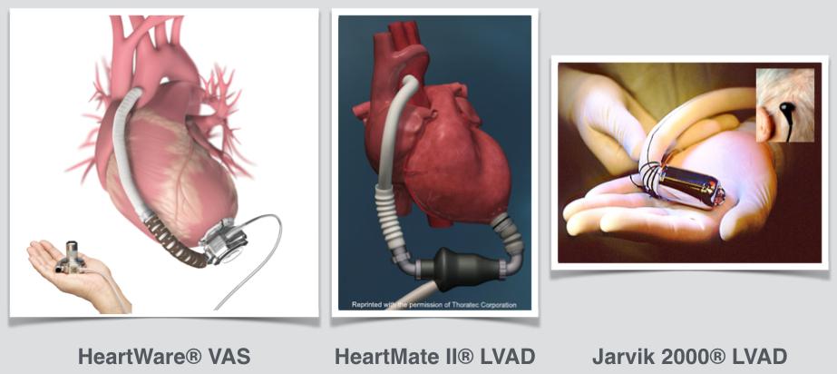 Fig. 4: Sistemi d'assistenza del cuore sinistro (LVAD).